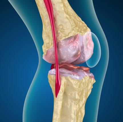 Gelenkschmerzen treten häufig im Knie auf