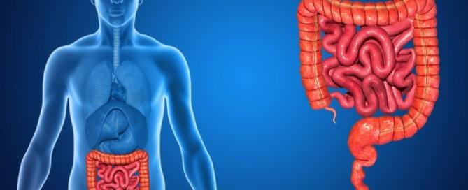 Morbus Crohn mit Cannabidiol behandeln