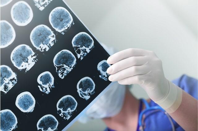 CBD Öl bei Epilepsie